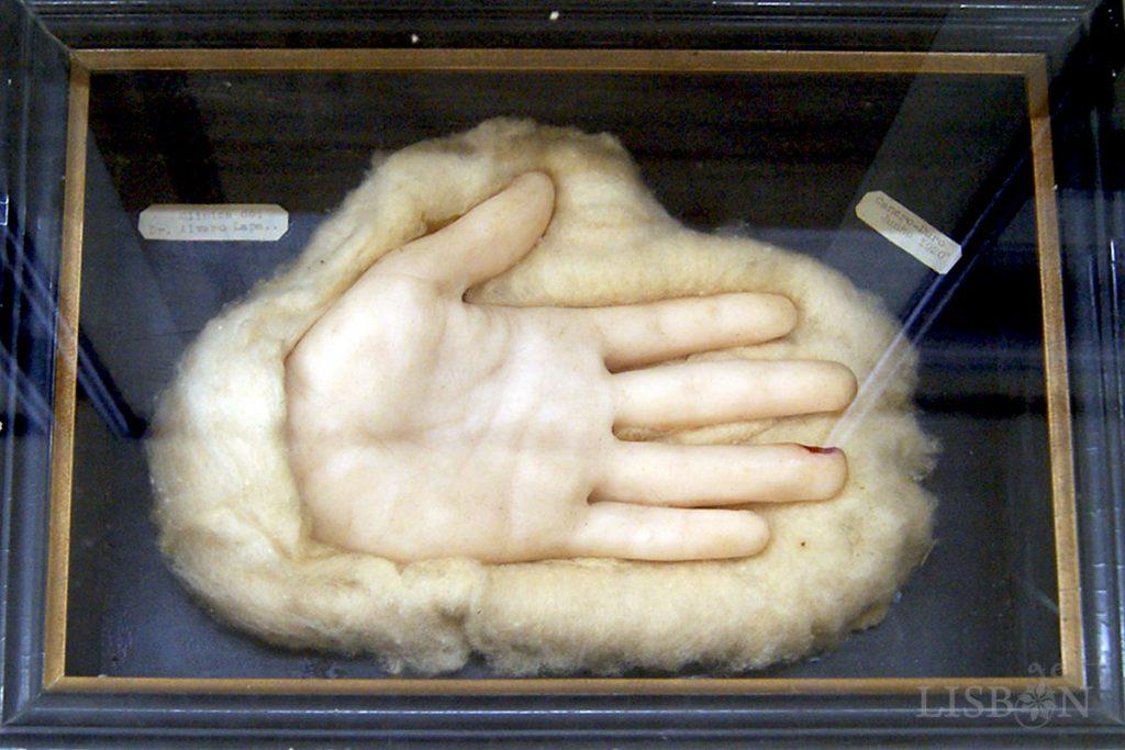 Modelo de cera assinado pelo escultor ceroplástico E. Anneda da Colecção de Dermatologia do Hospital dos Capuchos