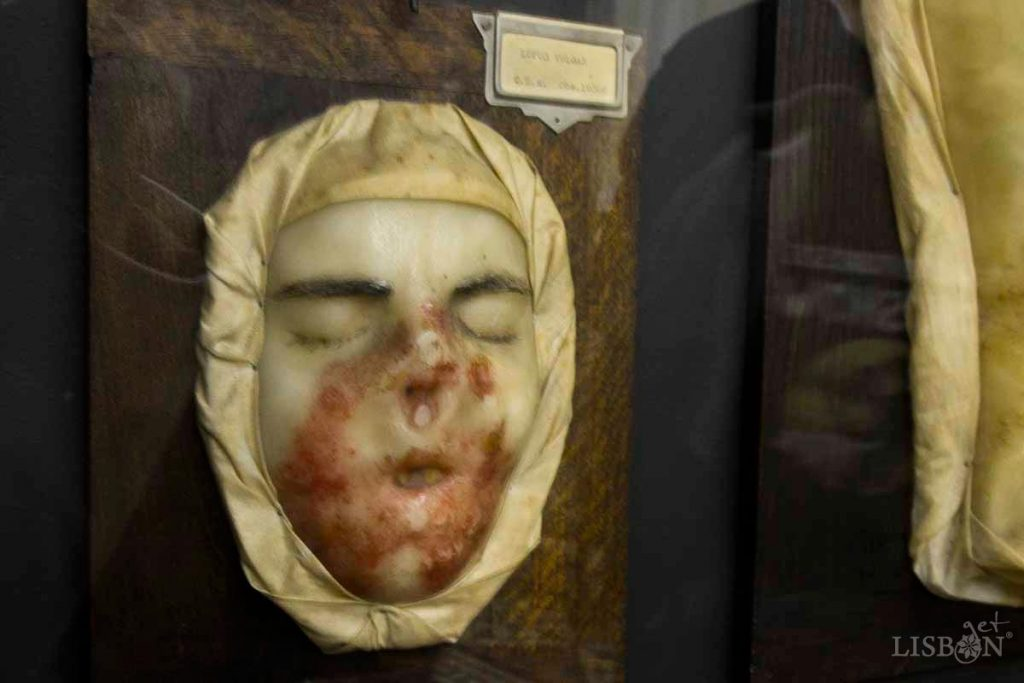 Máscara de cera da Colecção de Dermatologia do Hospital dos Capuchos