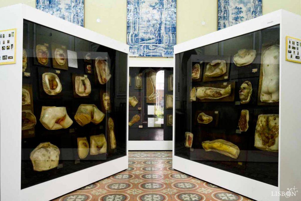 Expositores com modelos de cera de diferentes patologias da Colecção de Dermatologia do Hospital dos Capuchos