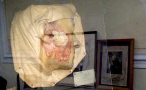 Colecção de Dermatologia do Hospital dos Capuchos